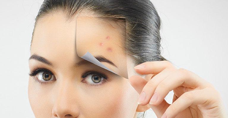 traitement de l'acne