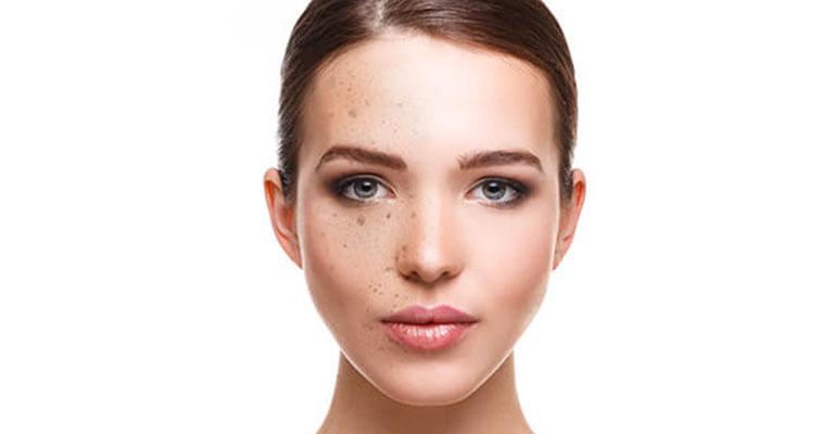 traitement-pigmentaire